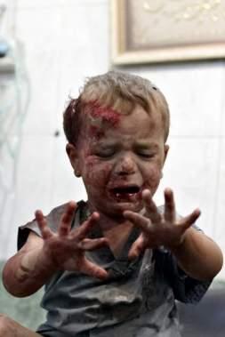 syria_boybleeding